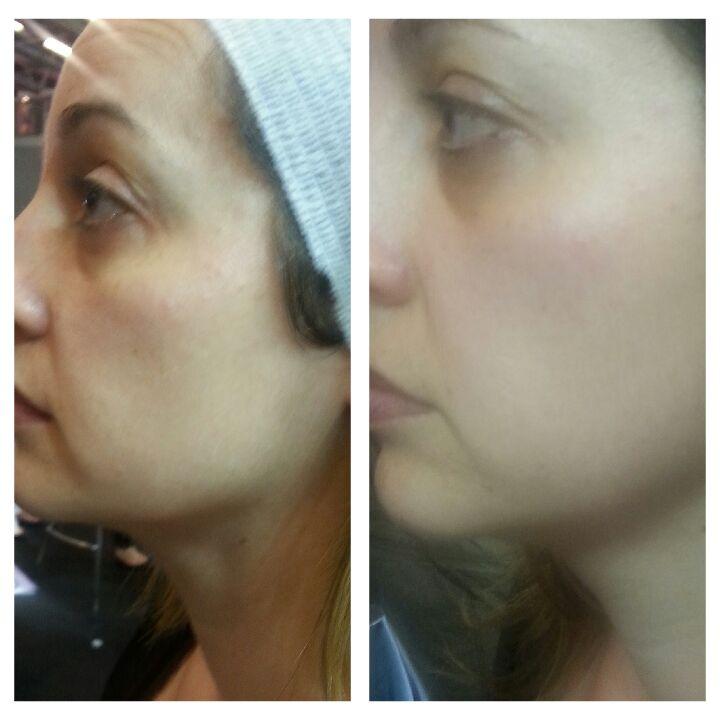 Avant-après soin visage WISHpro